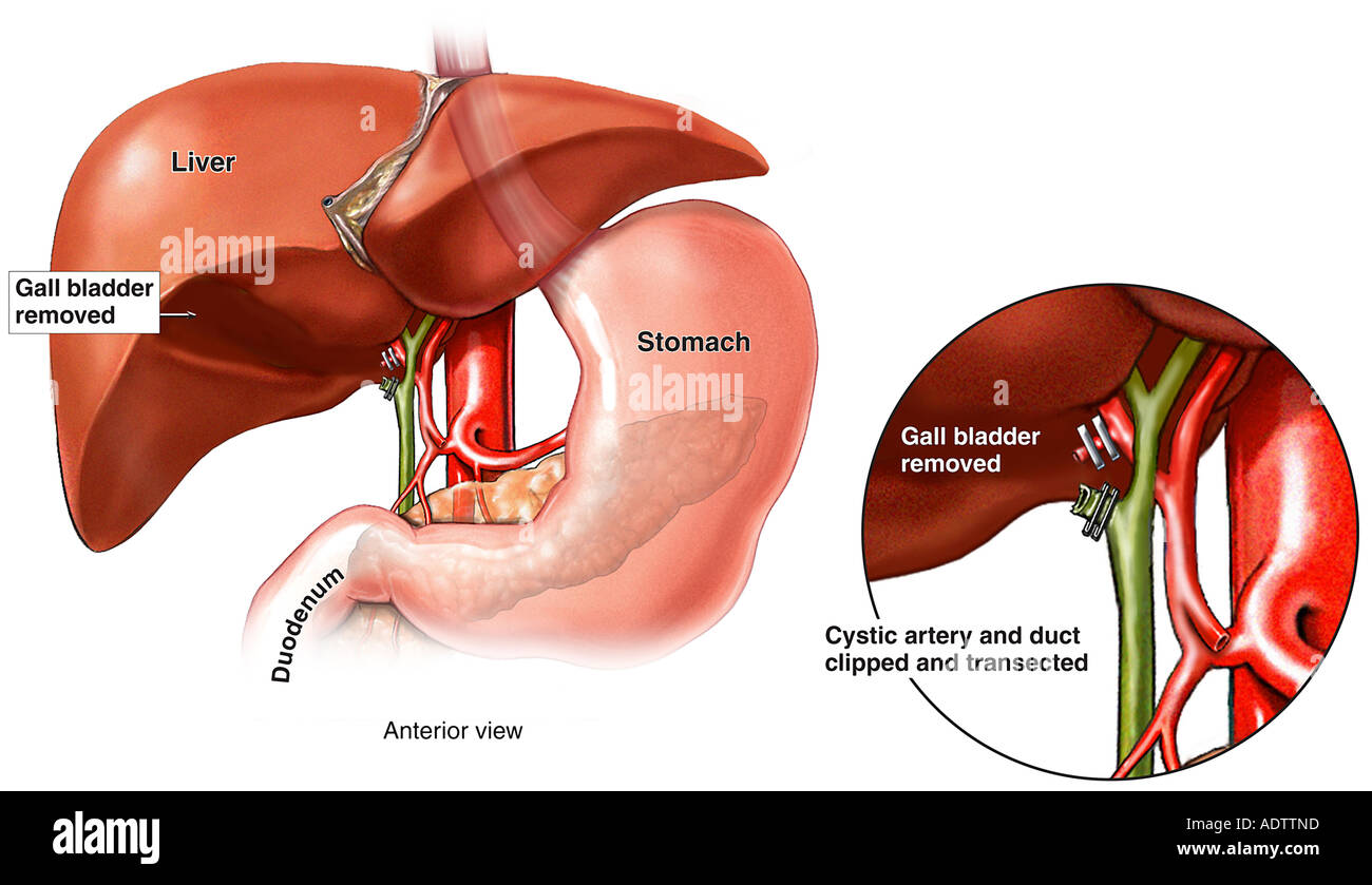 Post Cholecystectomy Stock Photos & Post Cholecystectomy Stock ...