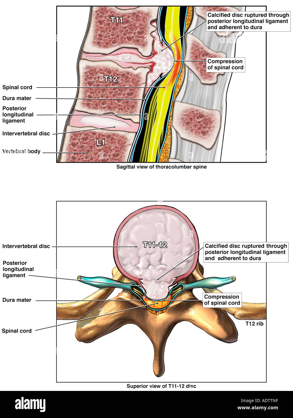 Rupture of T11-12 Disc with Severe Spinal Cord Compression - Stock Image