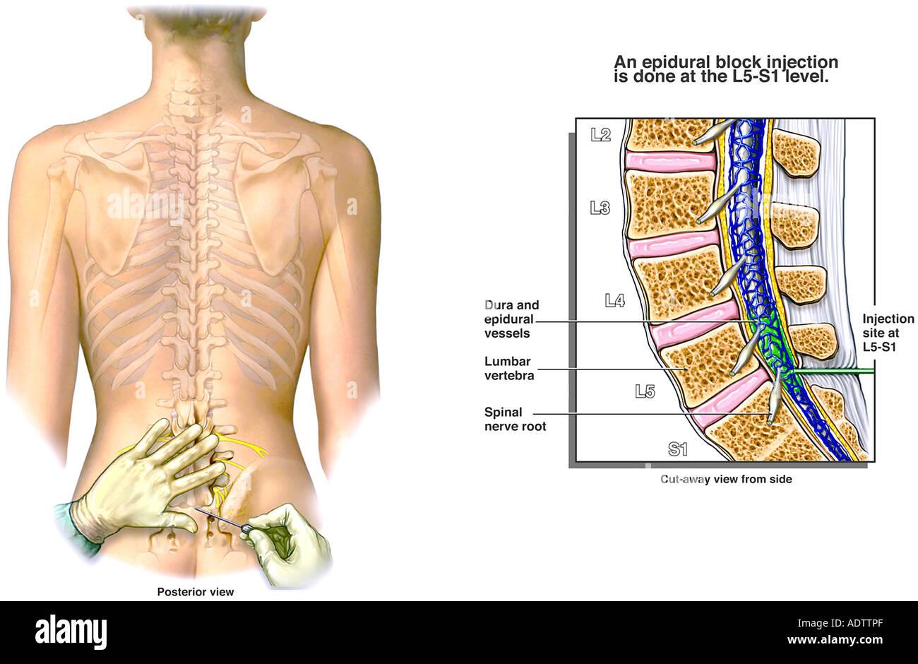Lumbar Epidural Injection - Stock Image