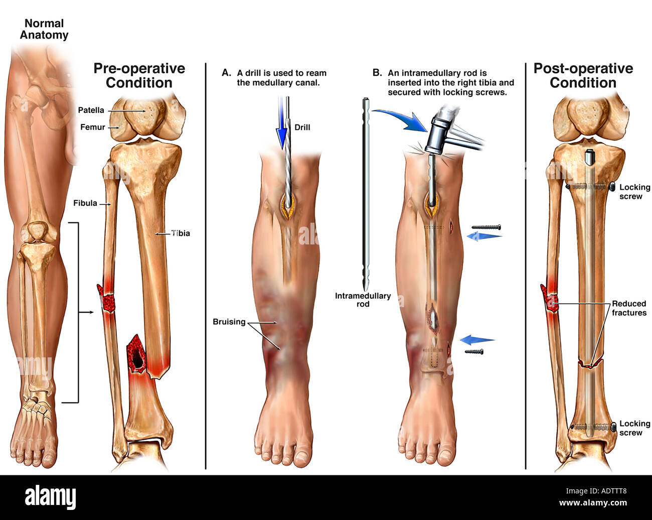Lower Leg Fractures Broken Tibia And Fibula With Surgical Fixation