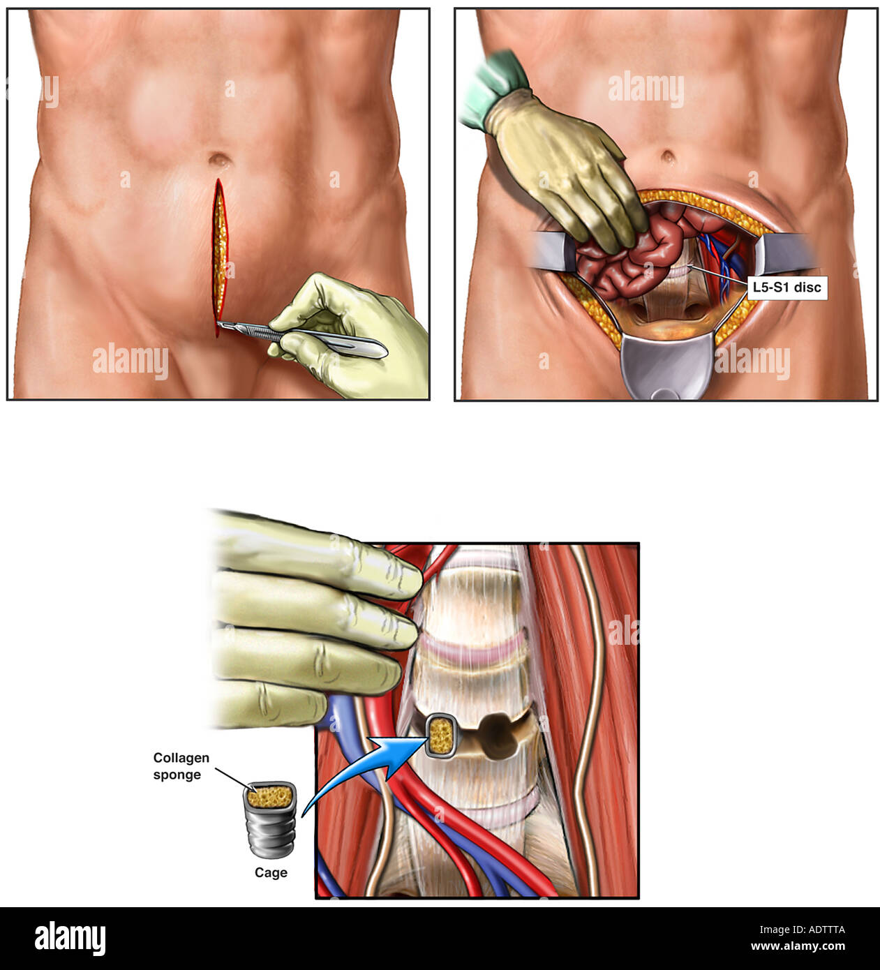 L4-5 Anterior Lumbar Spinal Fusion Surgery Stock Photo