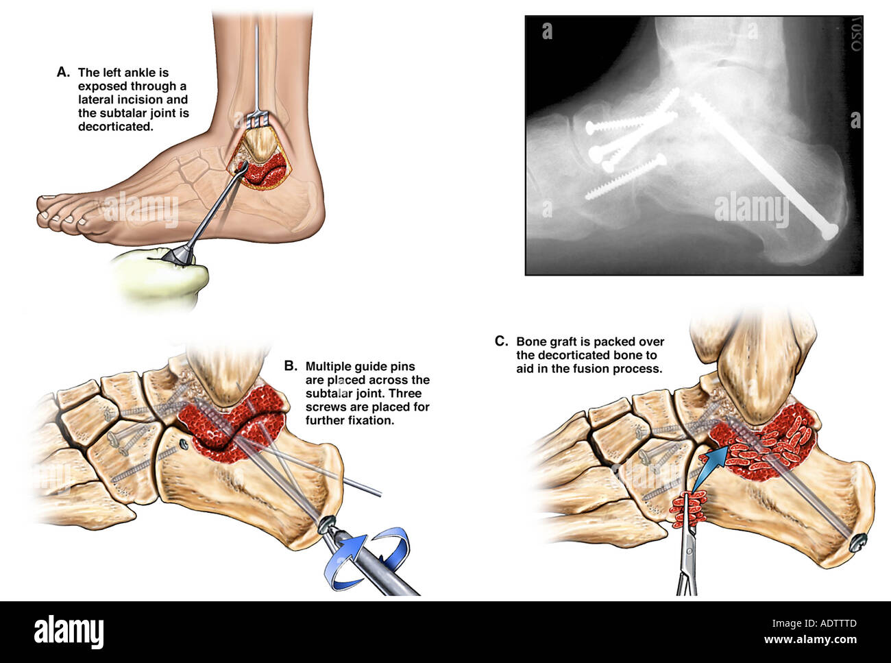 Fractured Ankle Joint with Triple Arthrodesis Fusion Surgery - Stock Image