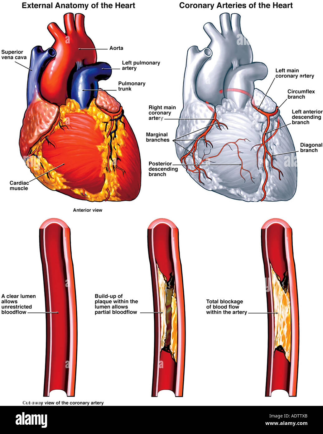 Anatomy of the Heart with Potential Blockage Sites in Coronary Stock ...