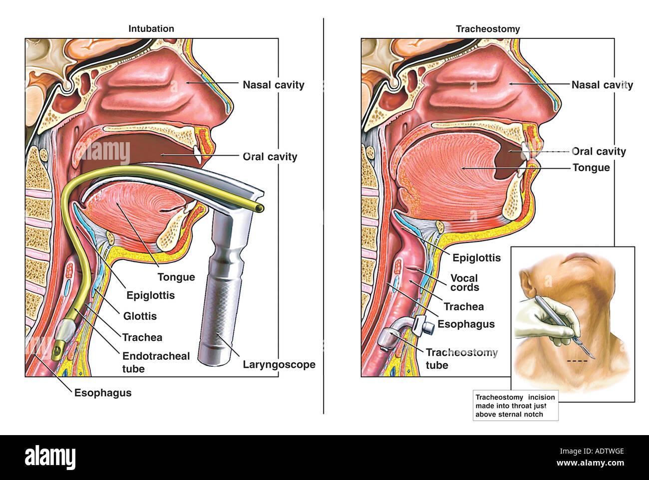 Classic Intubation and Tracheostomy Procedures Stock Photo: 7710413 ...