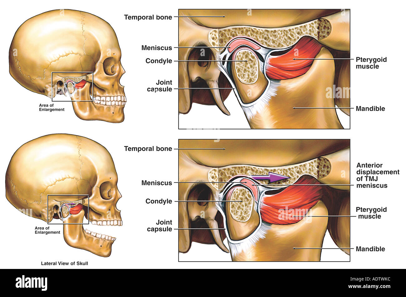 Anterior Displacement of the Right Temporomandibular Joint (TMJ ...