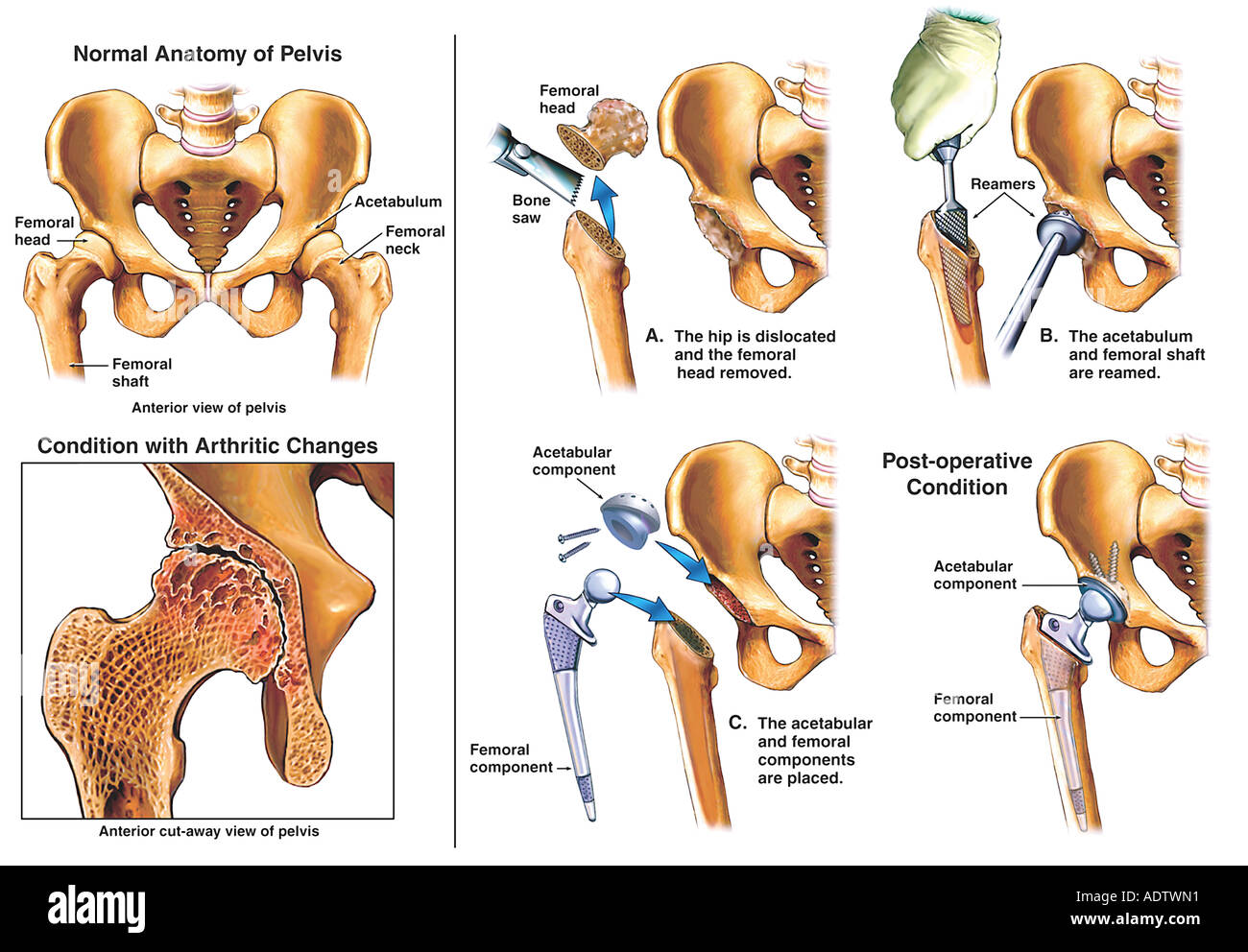 Total Hip Replacement Surgery Stock Photo 7710480 Alamy