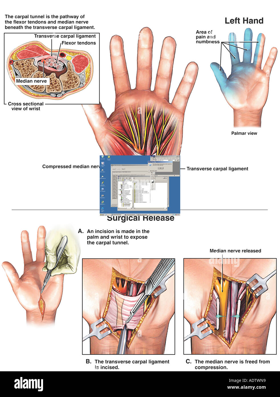 Carpal Tunnel Syndrome and Surgical Release: Left Hand - Stock Image