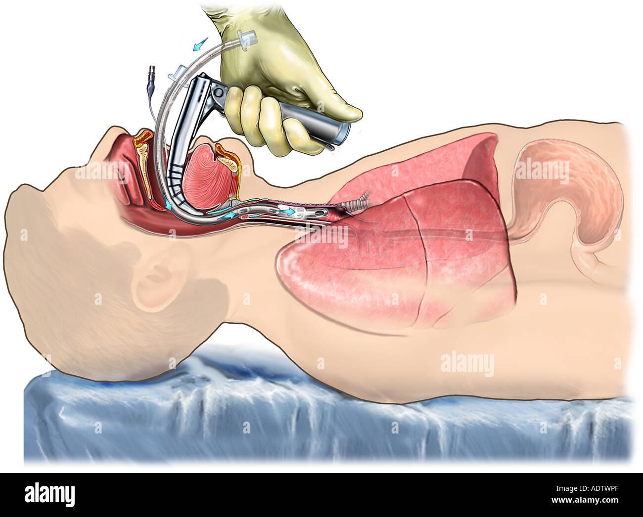 Proper Laryngoscopic Endotracheal Intubation Stock Photo: 7710510 ...