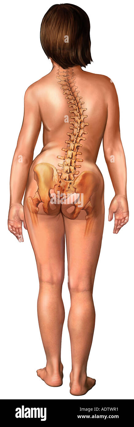 Young Girl with Scoliosis, Posterior View - Stock Image