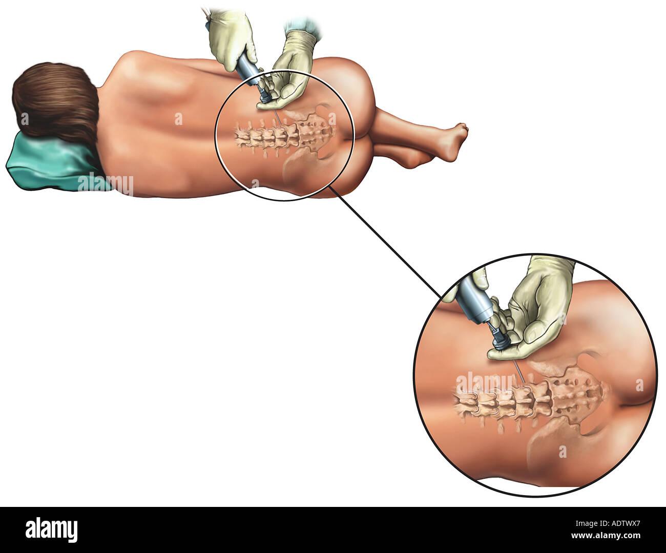 Epidural Nerve Block Injection - Stock Image