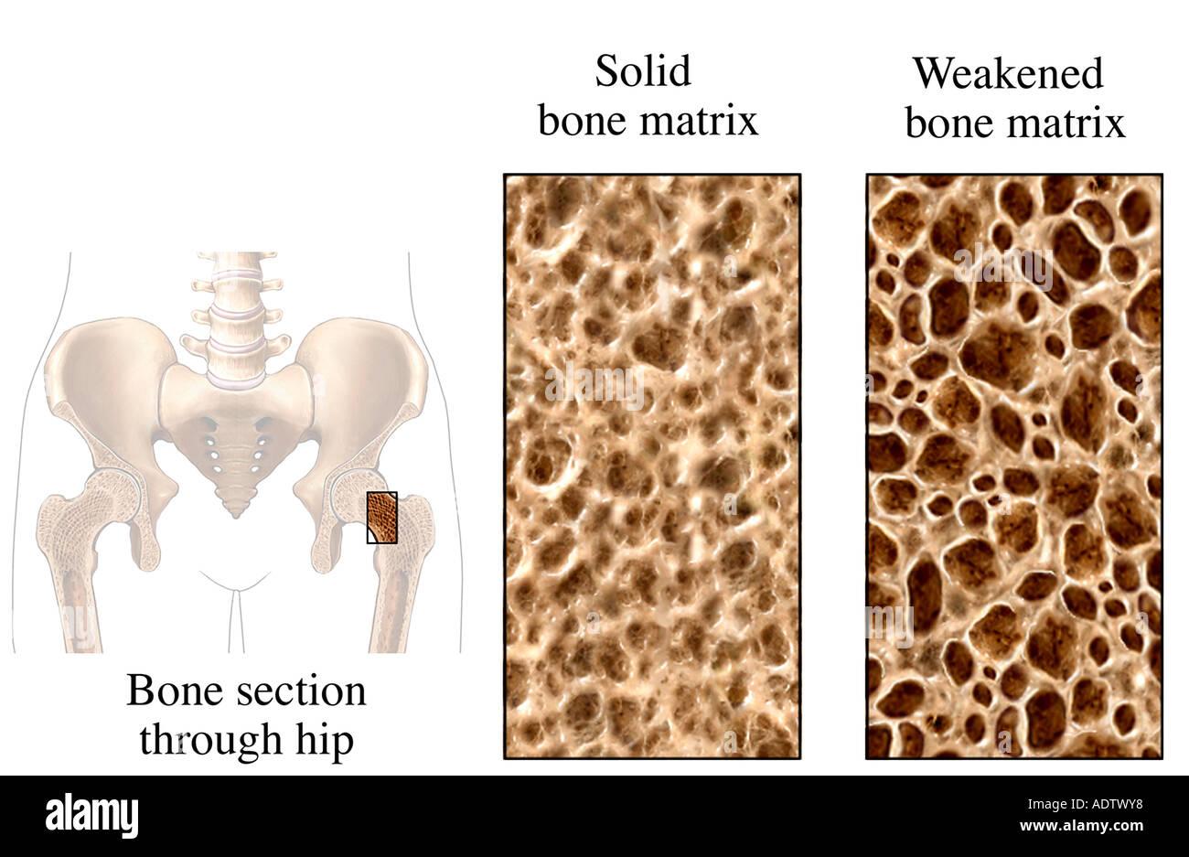 Osteoporosis - Stock Image