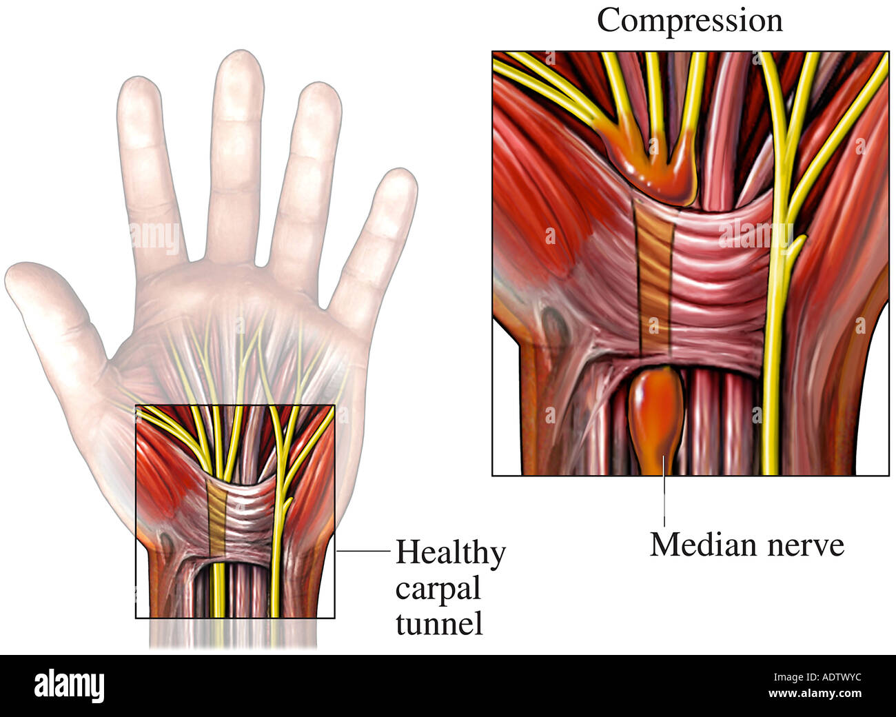Carpal Tunnel Syndrome Stock Photo: 7710587 - Alamy