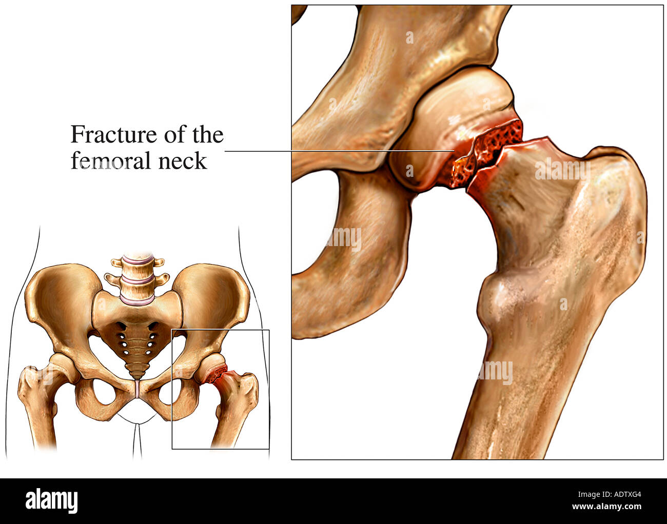 Hip Fracture, femoral neck fracture - Stock Image