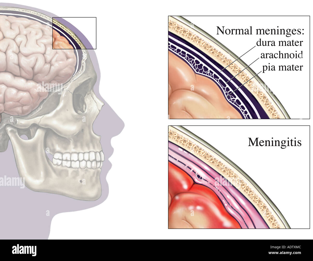 Bacterial Meningitis Brain Covering Infection Stock Photo: 7710667 ...