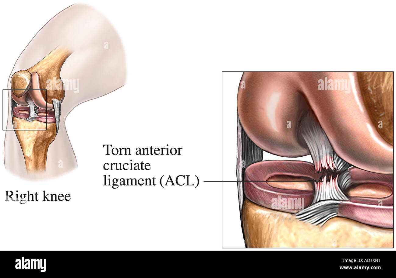 Knee Tear of the Anterior Cruciate Ligament Torn ACL - Stock Image