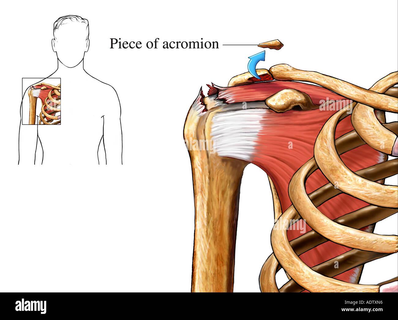 Rotator Cuff Repair - Acromioplasty Stock Photo: 7710677 - Alamy