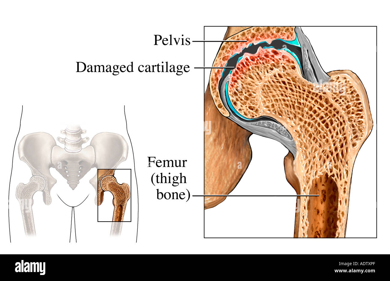Hip Osteoarthritis - Stock Image