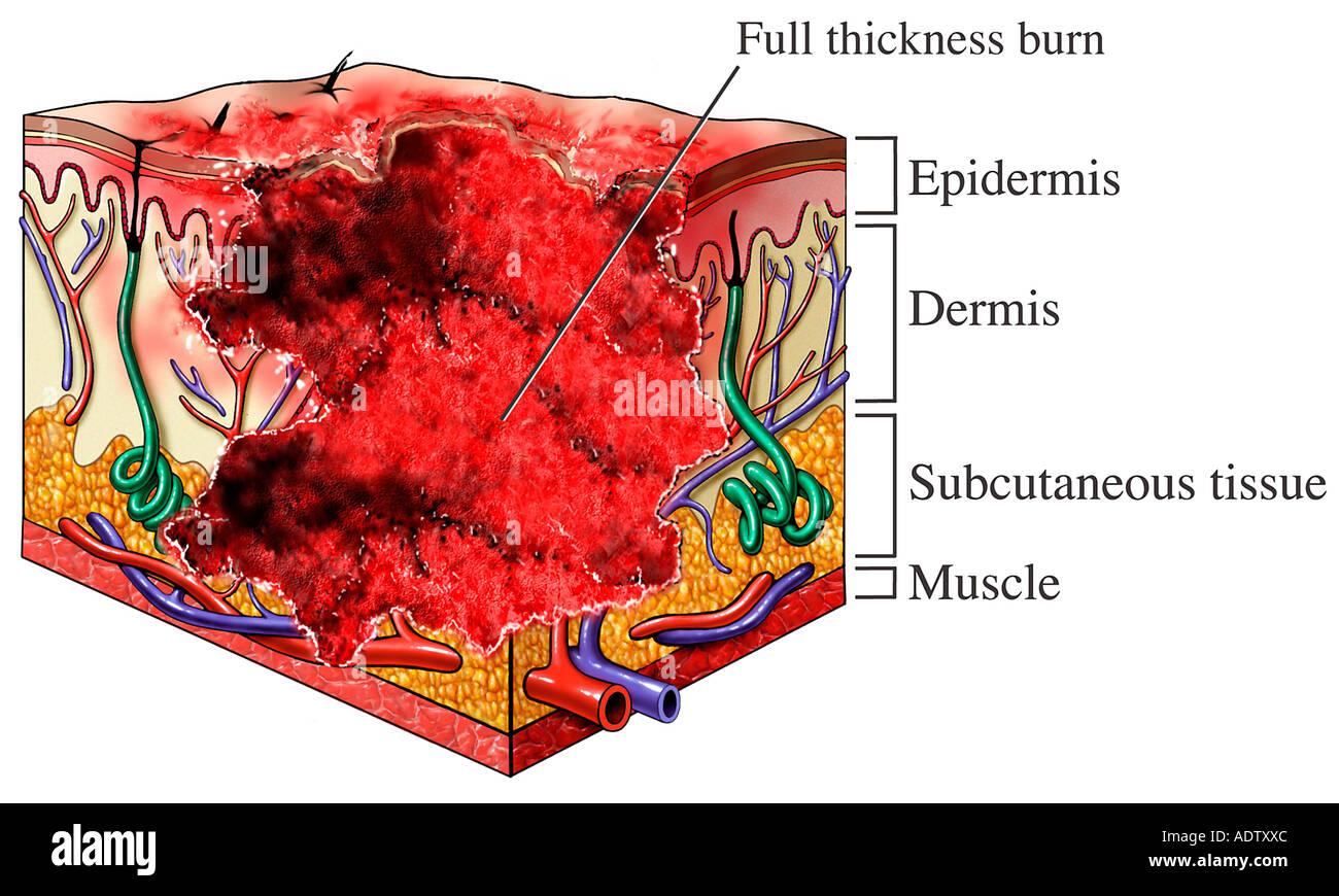 Third Degree Burn: Full Thickness Burn Stock Photo - Alamy