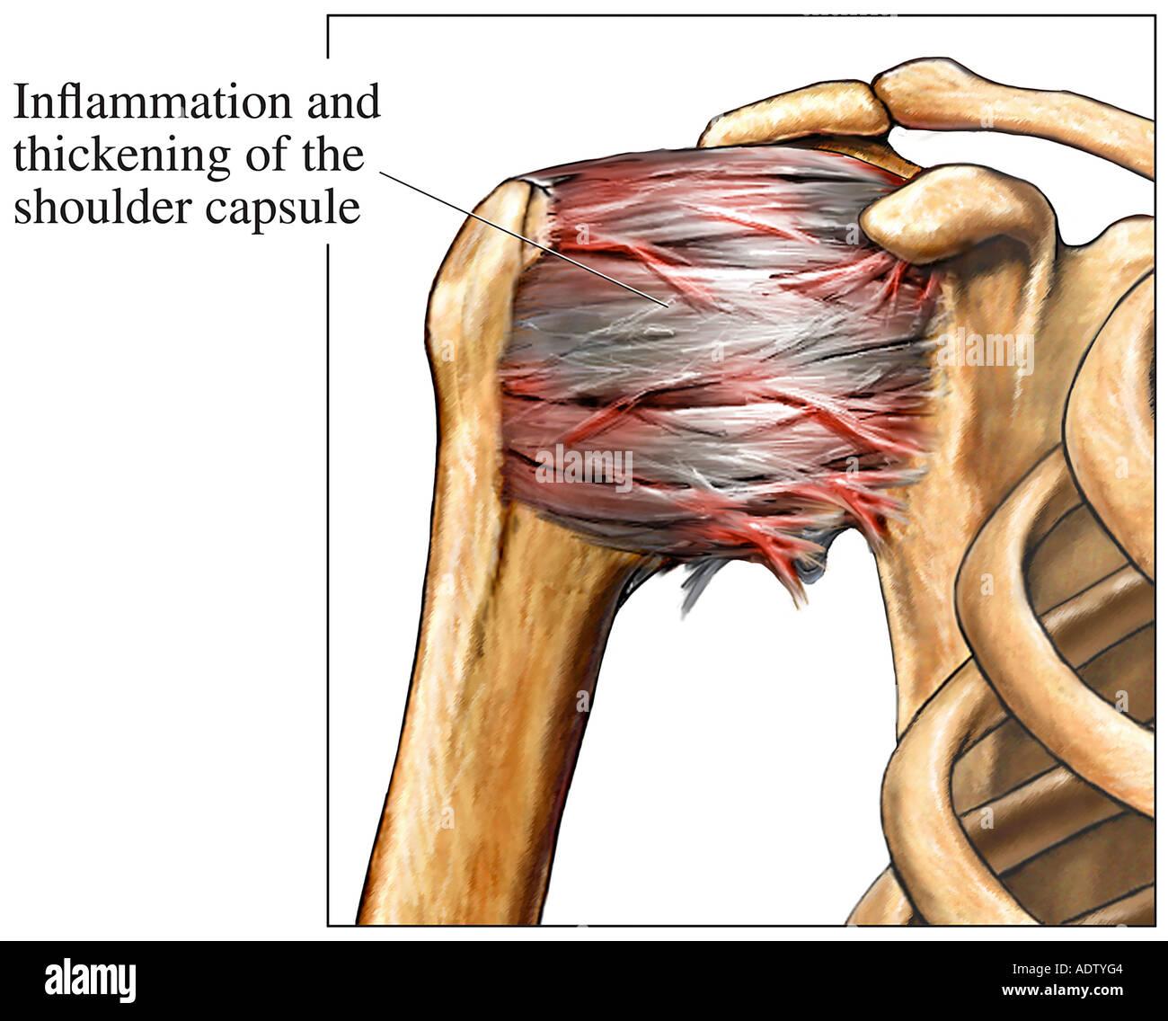 Adhesive Capsulitis of the Shoulder Stock Photo: 7710787 - Alamy