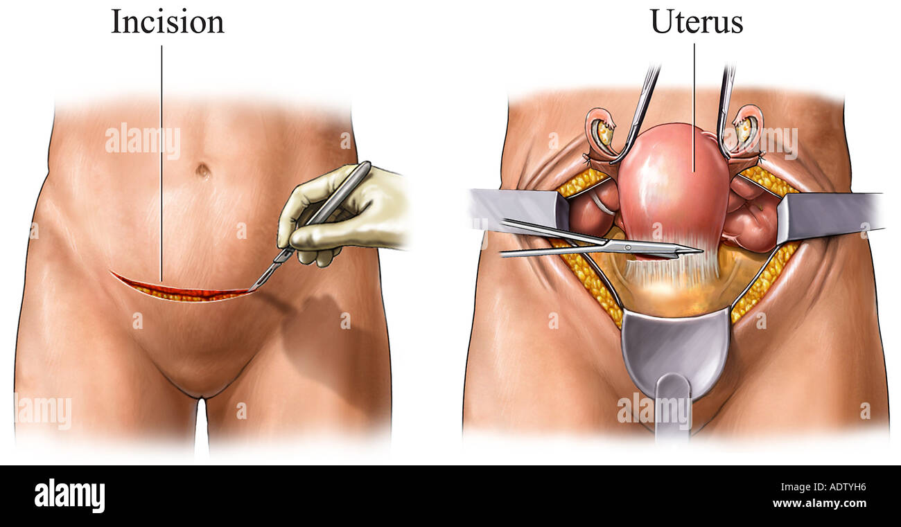 Abdominal Hysterectomy - Stock Image