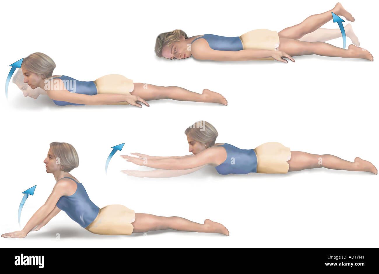 Ankylosing Spondylitis Prone Hip Extensor Exercise - Stock Image