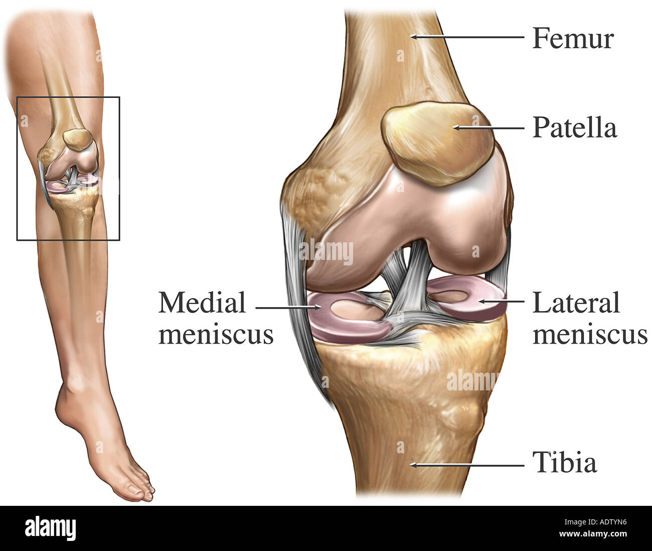 Total Knee Replacement Stock Photo 7710869 Alamy