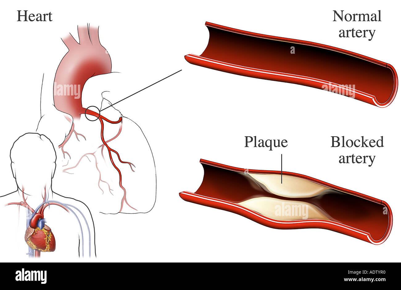 Normal vs blocked artery stock photo 7710895 alamy blocked artery ccuart Image collections