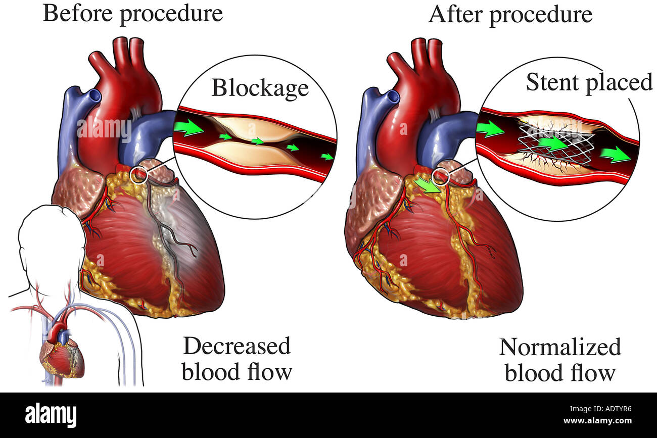 Stent repair of blocked coronary artery stock photo 7710901 alamy stent repair of blocked coronary artery ccuart Image collections