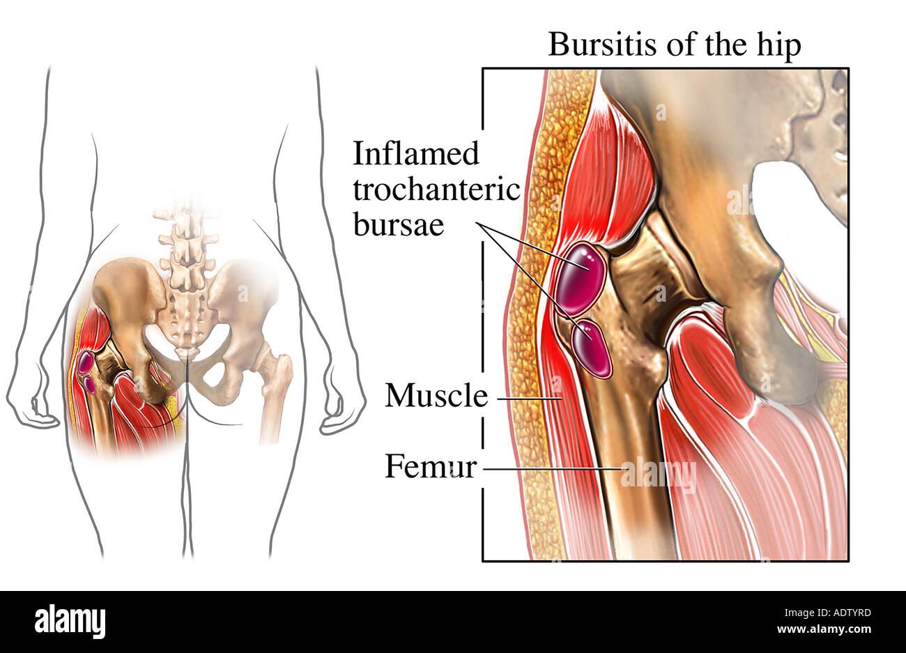 Bursitis of the Hip - Stock Image