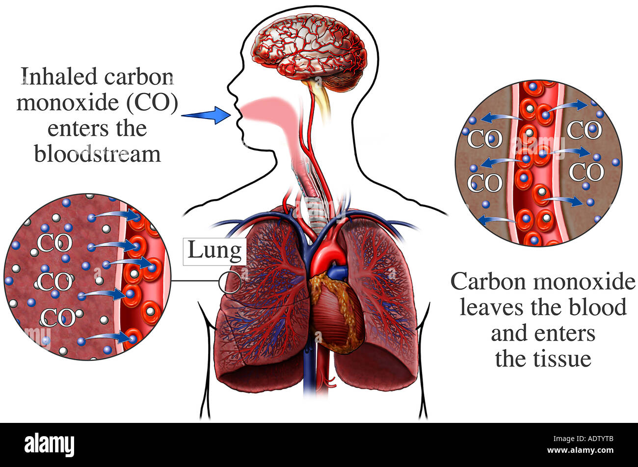 Gas exchange of the respiration stock photos gas exchange of the lungs carbon monoxide gas poisoning stock image ccuart Gallery