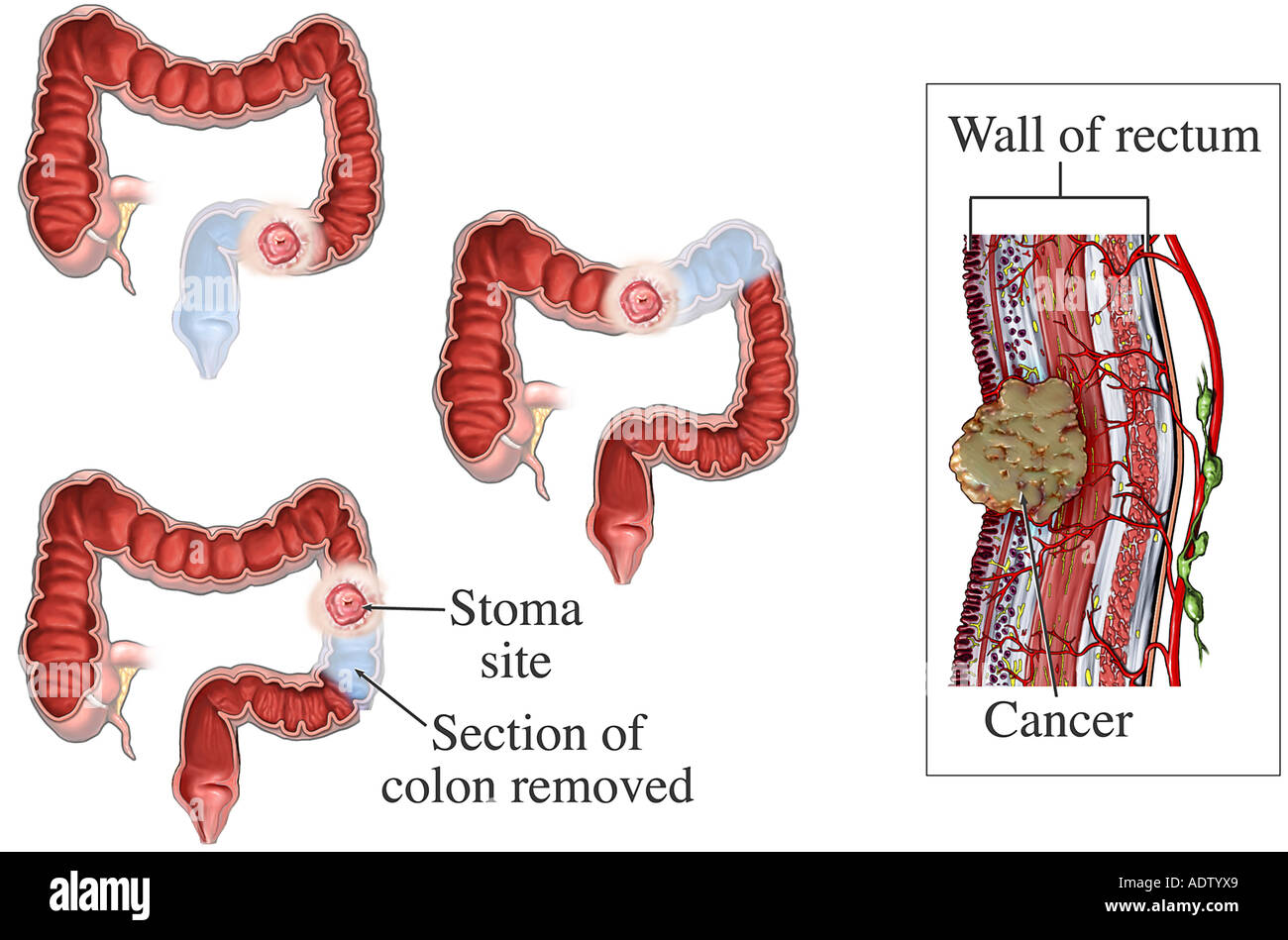 Stoma Sites - Stock Image