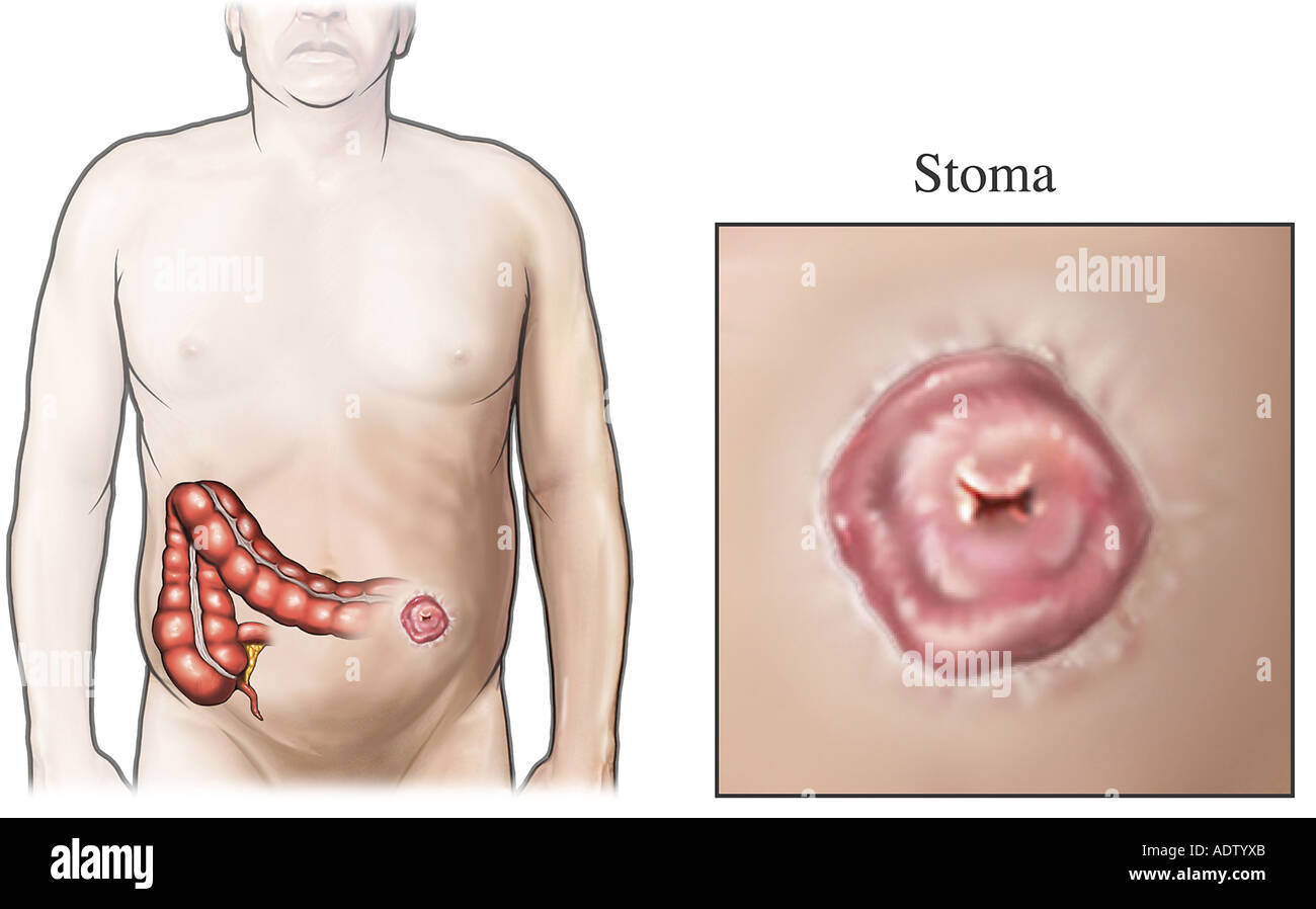Colostomy-Stoma - Stock Image