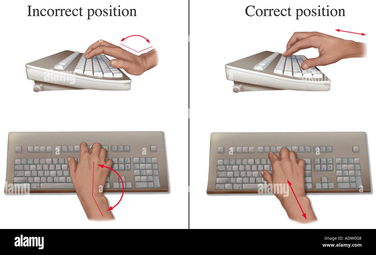 Carpal Tunnel Prevention: Ergonomic Hand Position at Keyboard - Stock Image