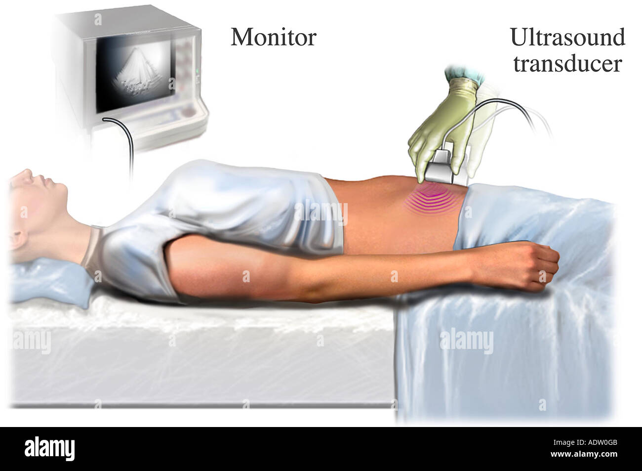 Pelvic Ultrasound - Stock Image