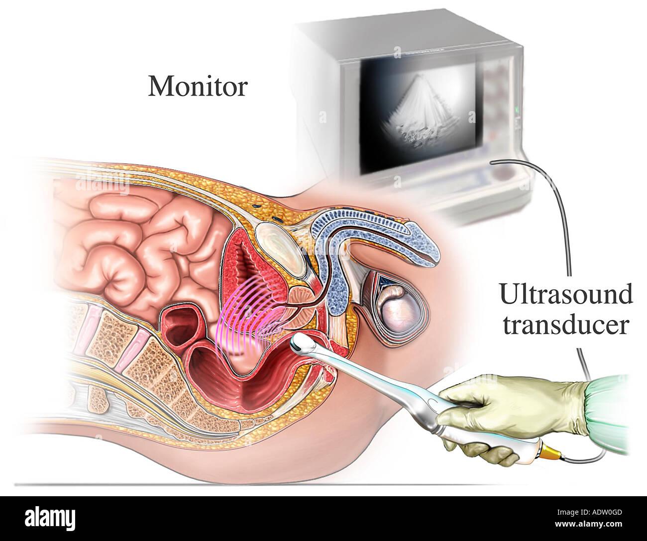 Cancer Prostate Ultrasound Stock Photos & Cancer Prostate Ultrasound ...