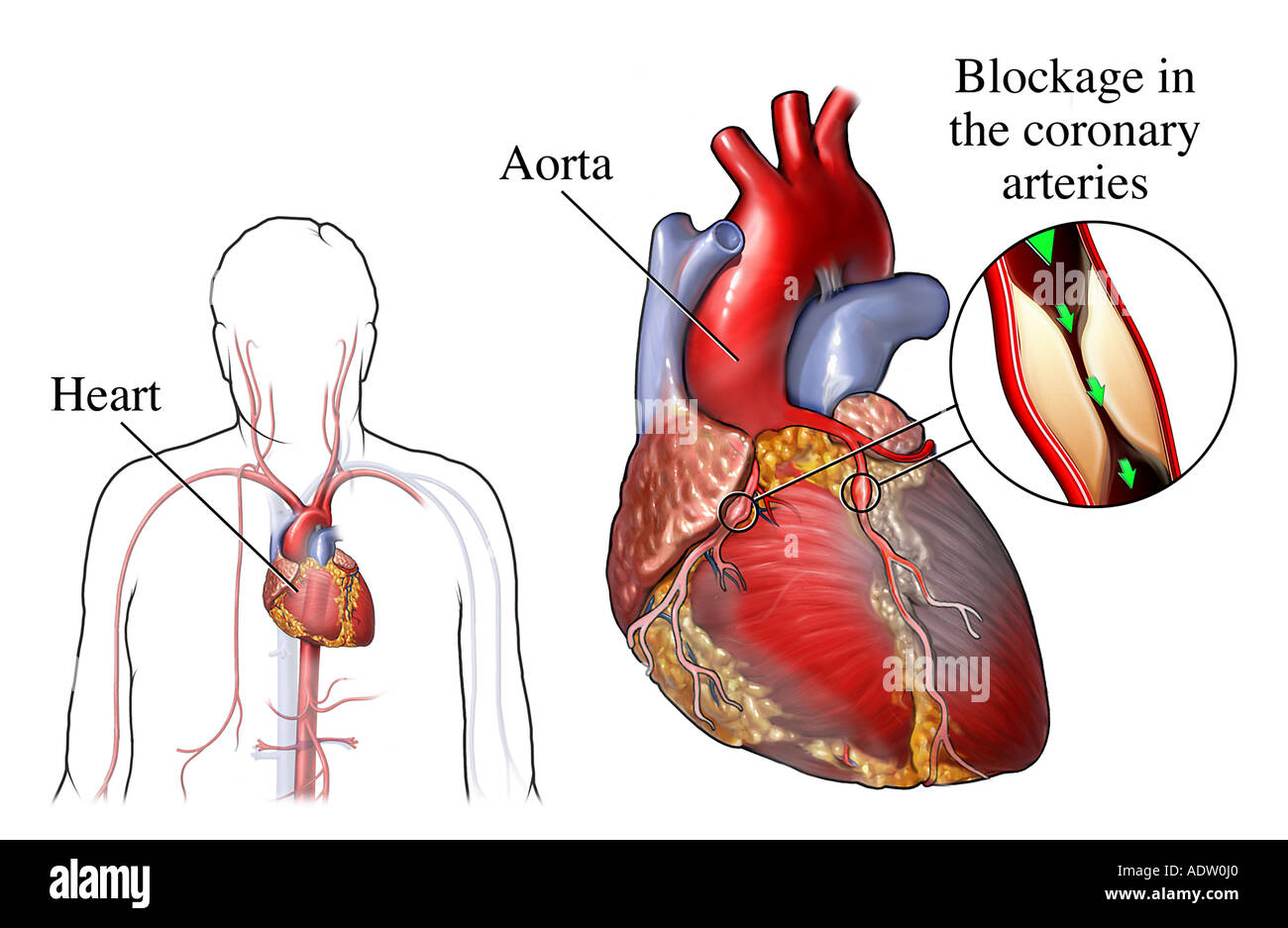 Coronary Artery Bypass Graft Stock Photos & Coronary Artery Bypass ...