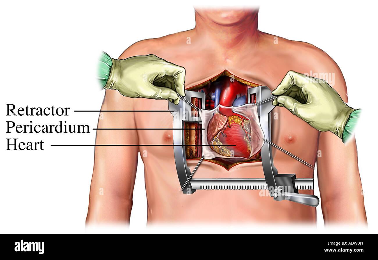 Coronary Artery Bypass Graft: Exposure - Stock Image
