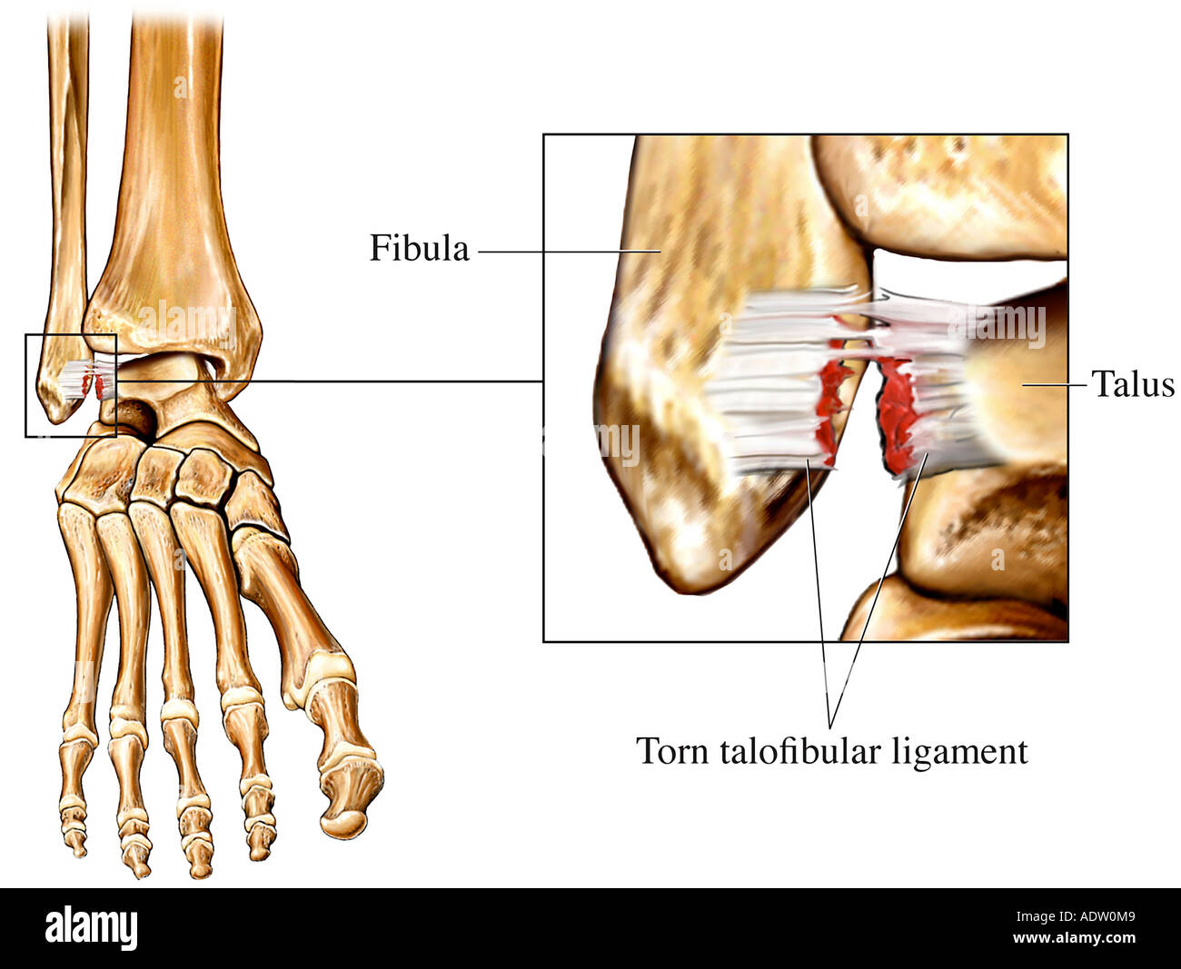 Sprained Ankle - Stock Image