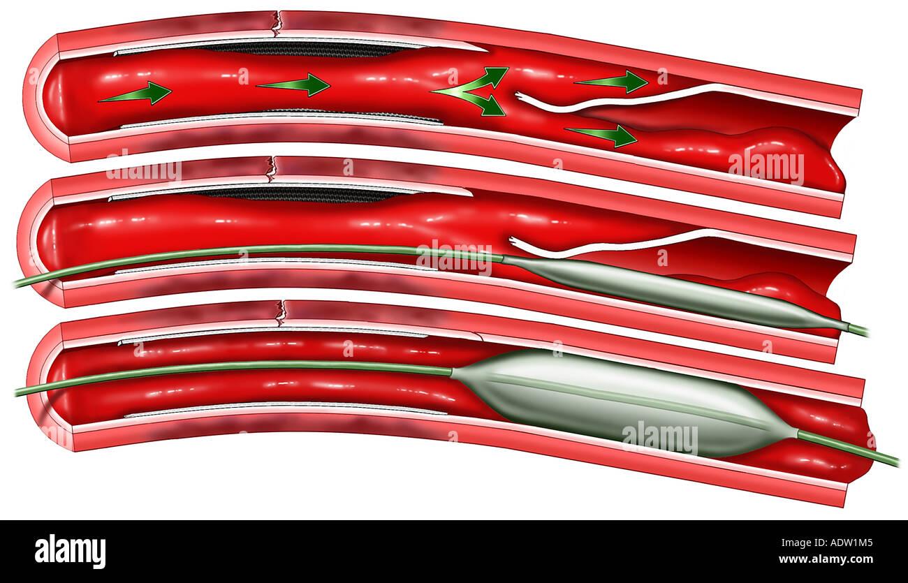 heart surgery blocked coronary artery series with balloon stock
