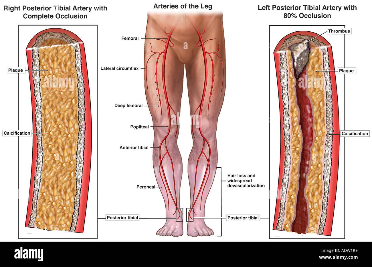 Blood Vessel Blockage Of The Lower Legs Stock Photo 7711288 Alamy