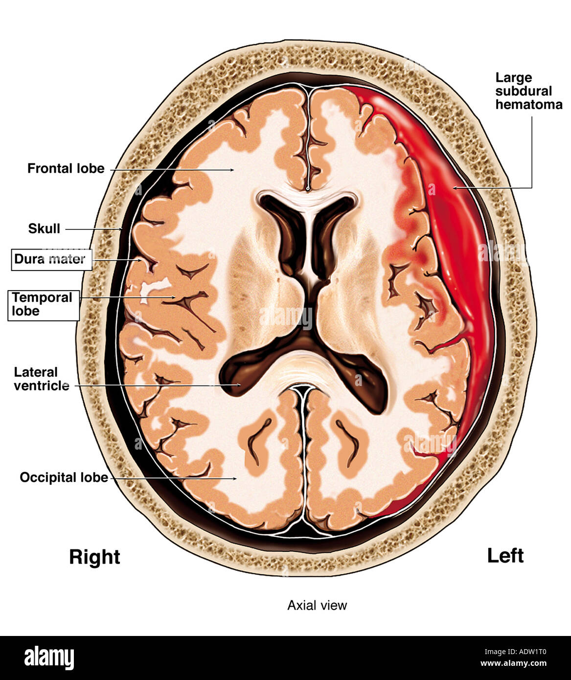 Worsening of Head Injury (Subdural Hematoma Stock Photo: 7711295 - Alamy