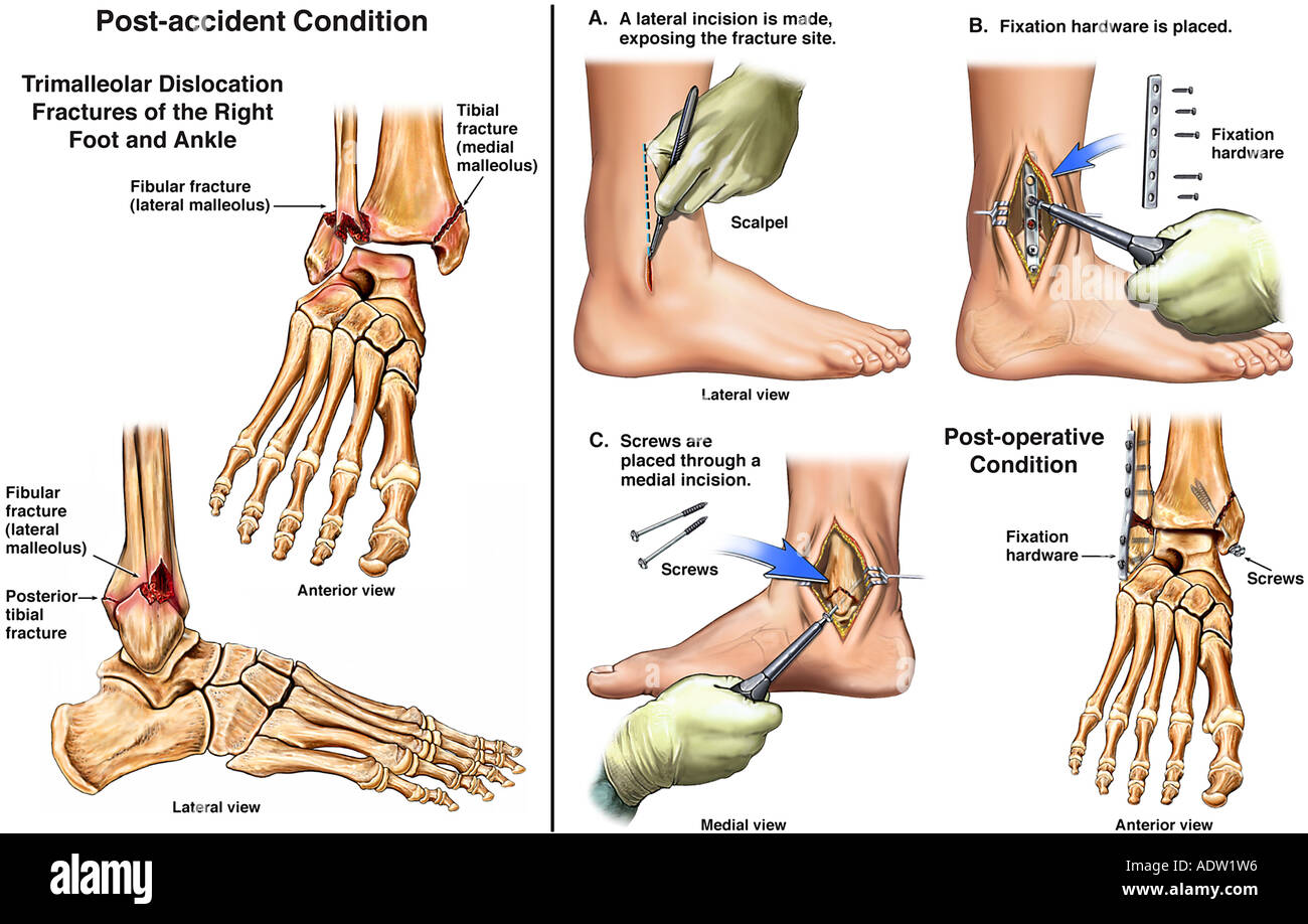 Trimalleolar Ankle Fractures with Surgical Fixation - Stock Image
