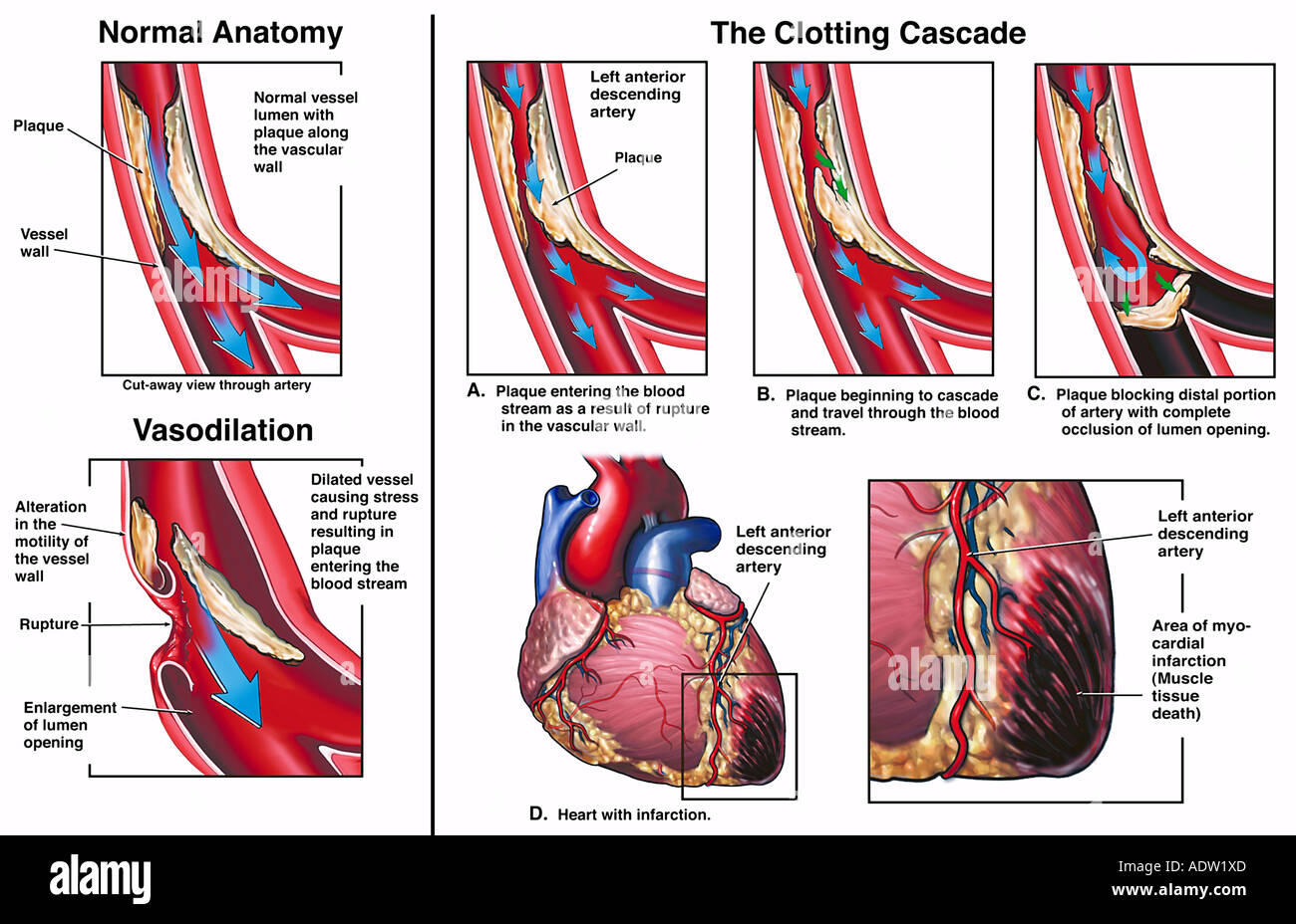 Mechanism Of Myocardial Infarction Due To Ruptured Coronary Artery