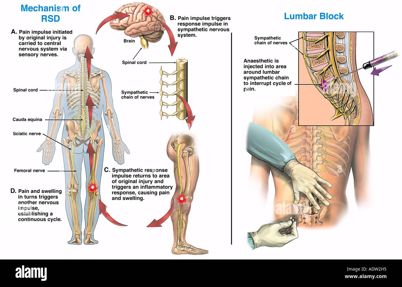 Sympathetic Nerves Stock Photos & Sympathetic Nerves Stock Images ...