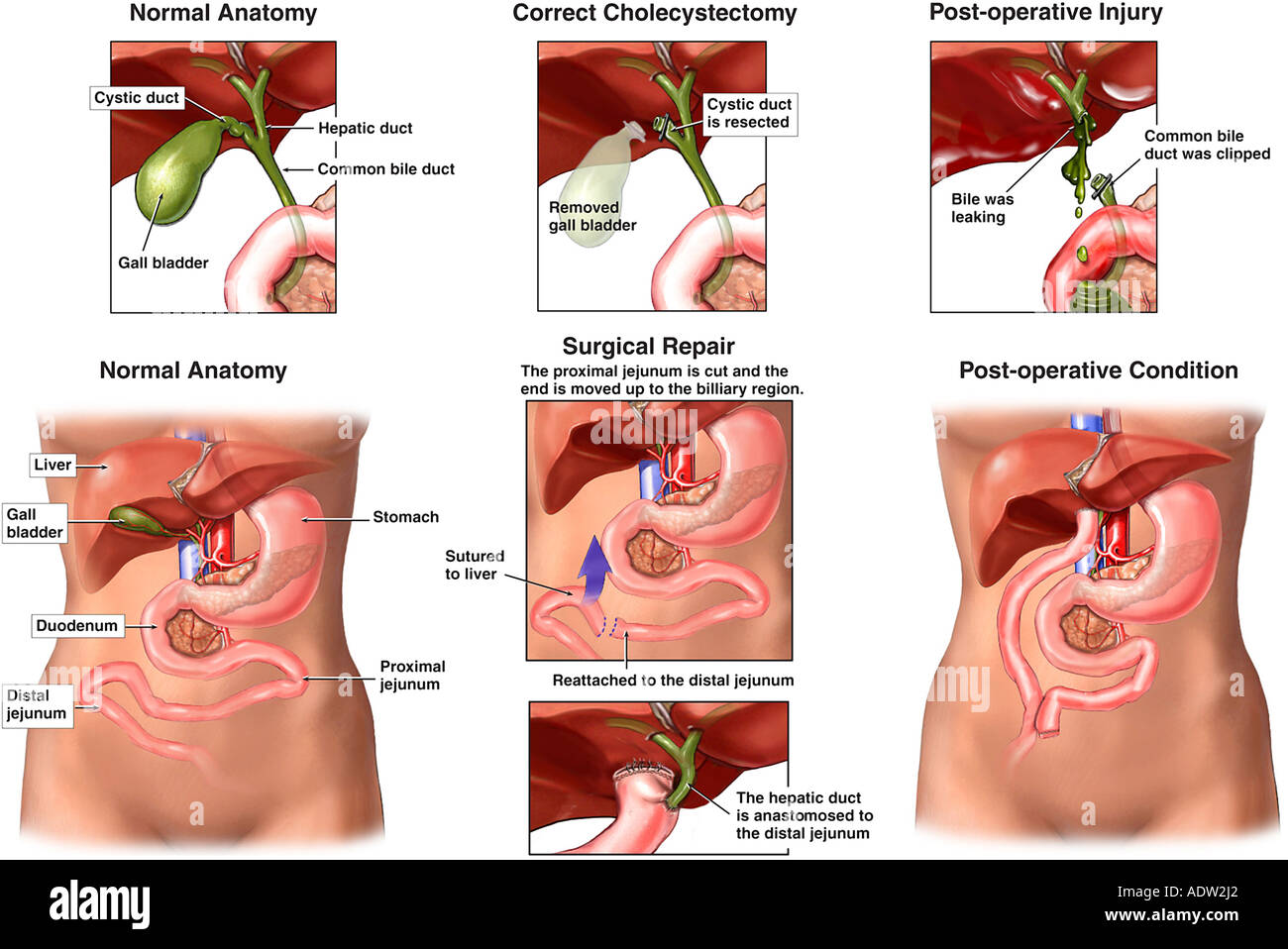 Common Bile Ducts Stock Photos & Common Bile Ducts Stock Images - Alamy