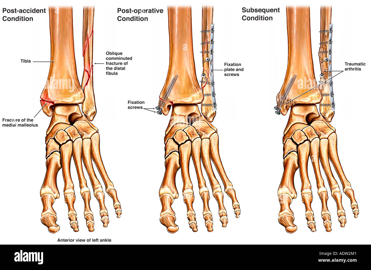 Left Ankle Fracture with Surgical Fixation and Subsequent Arthritis - Stock Image