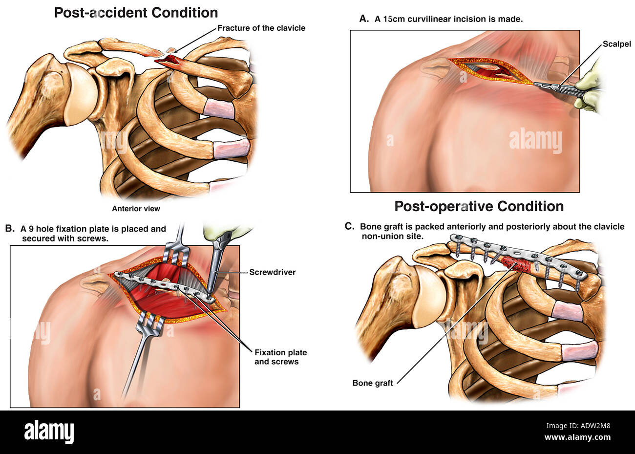Right Clavicle Fracture with Surgical Fixation - Stock Image