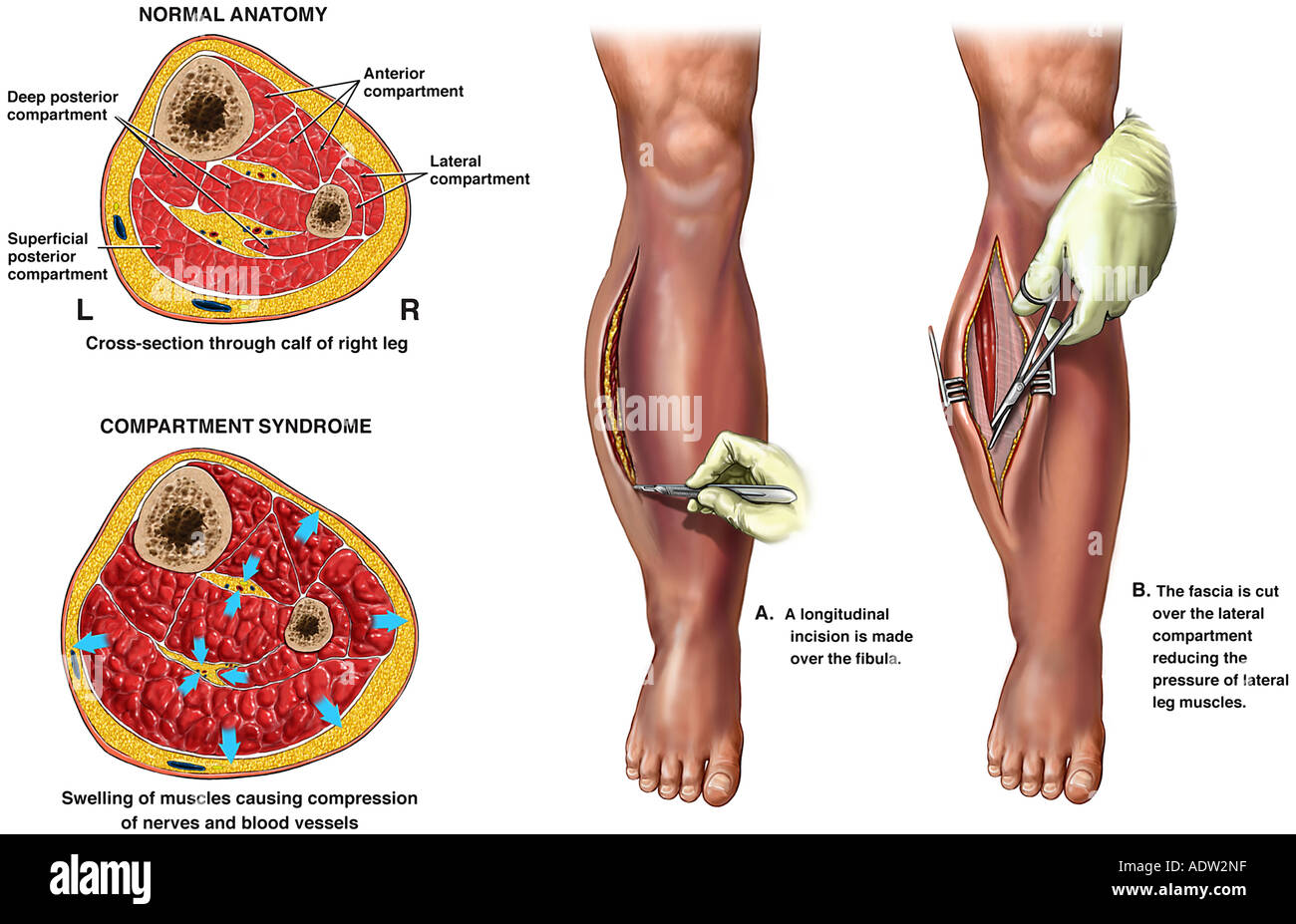 Compartment Syndrome with Fasciotomy Surgery Stock Photo: 7711454 ...