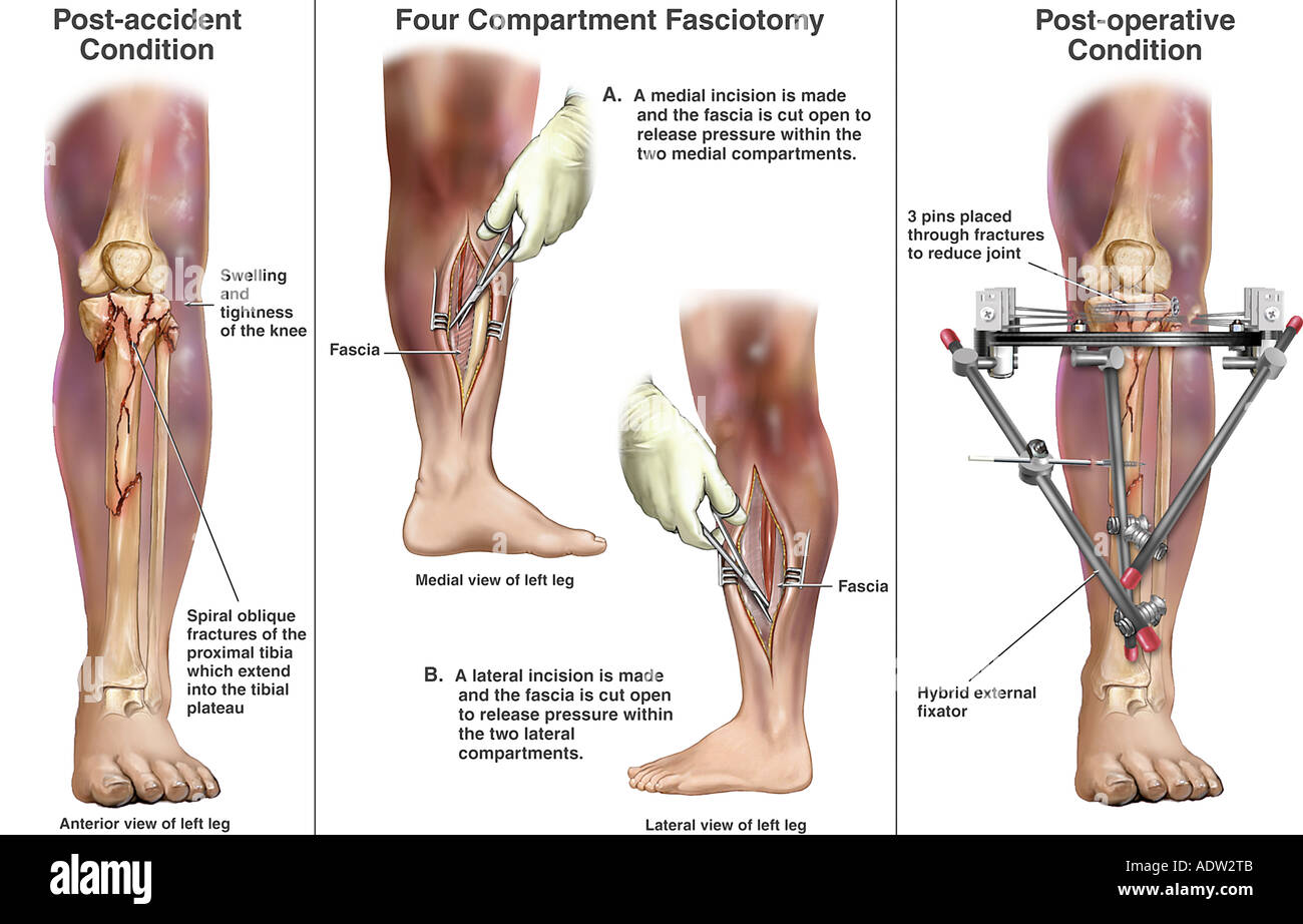 Tibial fracture fixation stock photos tibial fracture fixation left tibial fractures with subsequent four compartment fasciotomygery stock image ccuart