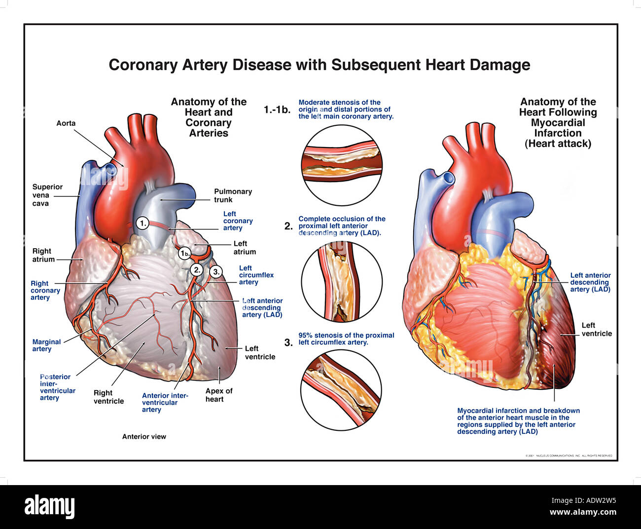 Coronary Artery Disease with Subsequent Heart Damage Stock Photo ...